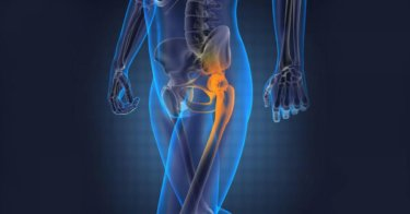 股関節前側の痛み