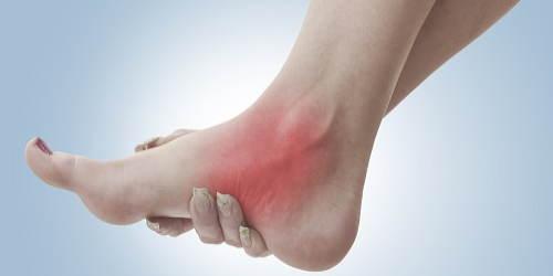 慢性的な足首の痛み
