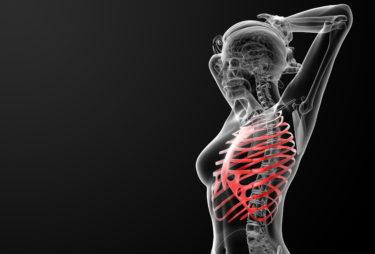 肋骨のサブラクセーション